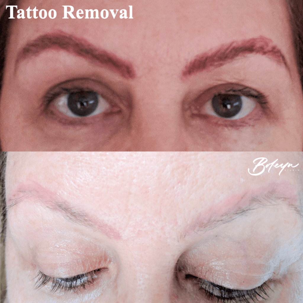 Tattoo Removal | Boleyn Studio