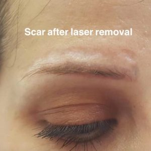 Saline Removal Of Microblading And